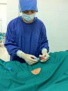 Bơm tế bào gốc vào khớp gối