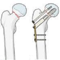 Gãy cổ xương đùi và hướng điều trị