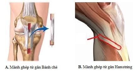 Lựa chọn vật liệu (mảnh ghép) nào cho phẫu thuật tái tạo dây chằng chéo khớp