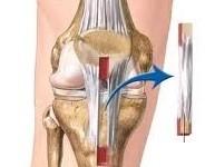 Lựa chọn vật liệu (mảnh ghép) nào cho phẫu thuật tái tạo dây chằng chéo khớp gối