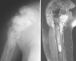 Đại cương về u xương