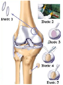 Điều trị thoái hóa khớp gối bằng phẫu thuật