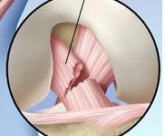 Tổn thương dây chằng chéo trước khớp gối: chẩn đoán và điều trị