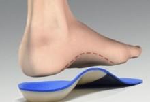 Bàn chân bẹt (Flatfoot)