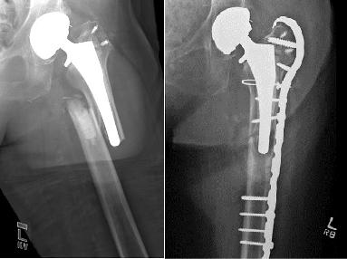 Gãy xương sau mổ thay khớp háng
