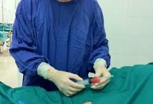 Tiêm tế bào gốc trị thoái hóa khớp gối