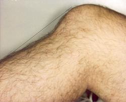 Chấn thương gối - các tổn thương thường gặp và hướng điều trị