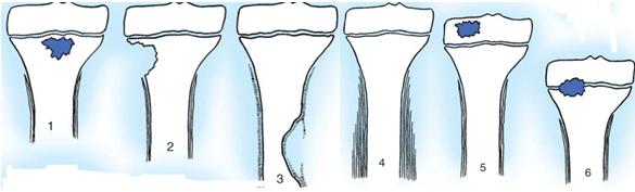 Viêm xương tủy (cốt tủy viêm)