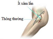 Phẫu thuật thay khớp háng ít xâm lấn