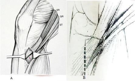 gân cơ thon và gân cơ bán gân