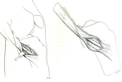 cơ thon và cơ bán gân