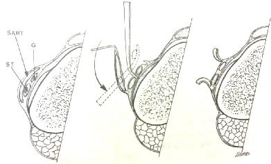 gân cơ thon và cơ bán gân