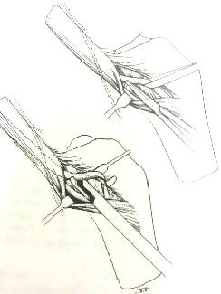 gân cơ bán gân và gân cơ thon