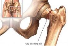 Thay khớp háng cho người cao tuổi – Giải pháp khi bị gãy cổ xương đùi