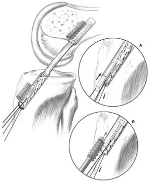 Các phương pháp phẫu thuật tái tạo dây chằng chéo trước khớp gối