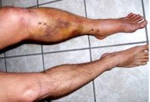 Gãy xương cẳng chân-chẩn đoán,hướng điều trị
