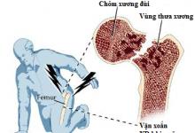 Phòng ngừa gãy xương vùng khớp háng ở người có tuổi