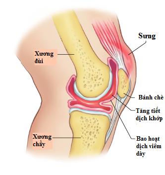 Viêm hoạt dịch khớp gối