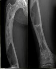 Loạn sản xơ xương