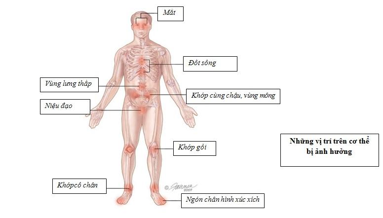 viêm khớp phản ứng