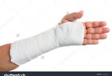 Những lưu ý đối với bệnh nhân sau bó bột điều trị gãy xương, chấn thương phần mềm