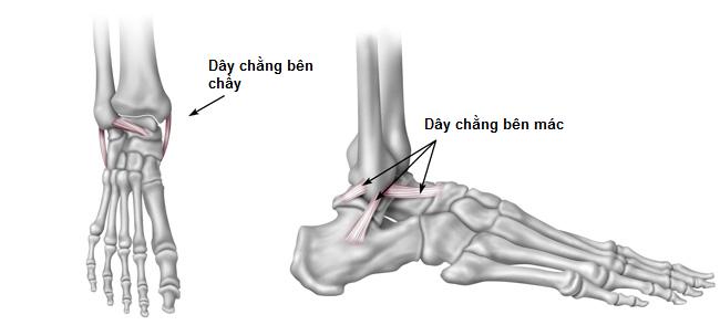 bong gân khớp cổ chân