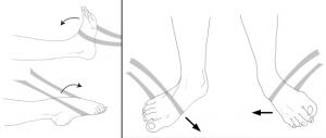 Phần lớn bong gân khớp cổ chân, nếu được điều trị đúng, kết quả tốt, khớp cổ chân trở lại cơ năng bình thường. Tập luyện sau khi bó bột đóng vai trò quan trọng trong phục hồi chức năng khớp. Nếu tập luyện không tốt thường dẫn đến cứng khớp, đau dai dẳng quanh khớp và dễ chấn thương tái diễn. Một số bài tập khi cổ chân hết đau Bong gân mãn tính Nếu bị bong gân một lần, các dây chằng không được phục hồi thì sẽ xãy ra bong gân tái diễn nhiều lần, Nếu đau kéo dài trên 4-6 tuần thì gọi là bong gân mãn tính. Các hoạt động có xu hướng làm cho tình trạng bong gân mạn tính nặng lên như bước trên nền mấp mô, chơi các môn thể thao làm cho cổ chân dễ bị vặn xoắn Phòng tránh bong gân 1. khởi động kỹ trước khi chơi thể thao hoặc hoạt động thể lực khác 2. đi giày thể thao đúng chủng loại 3. cẩn thận khi bước, chạy, nhảy trên nền mấp mô 4. giảm hoặc dừng chơi thể thao khi có tình trạng đau khớp cổ chân