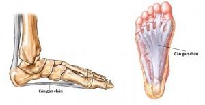 Gai xương gót